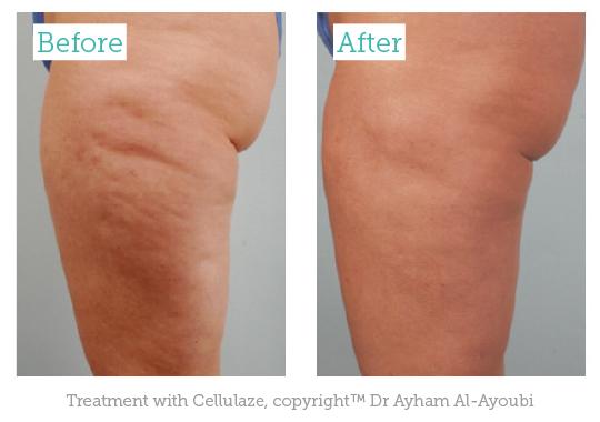 Cellulite The Common Patient Complaint Aesthetics